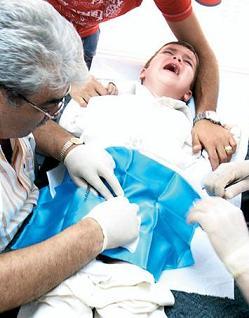 beschneidung aus medizinischen gründen